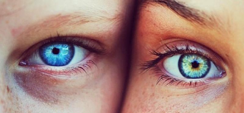 Occhi con lenti a contatto Zadalux, ottica nella provincia di Padova